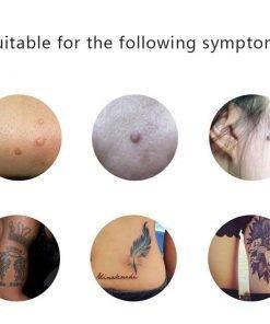 Mole Removal DermaPen - Skin Dark Spot Eraser